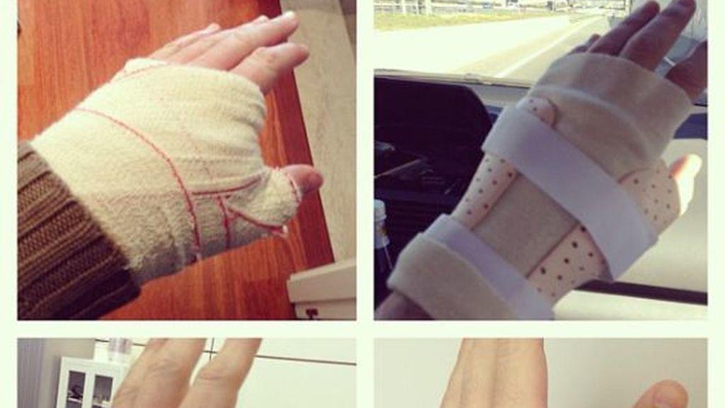 La evolución de la lesión en la mano de Iker Casillas