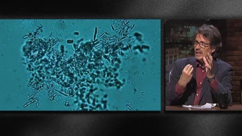 """José Miguel Gaona: """"La ameba mata prácticamente al 100% de las personas"""""""