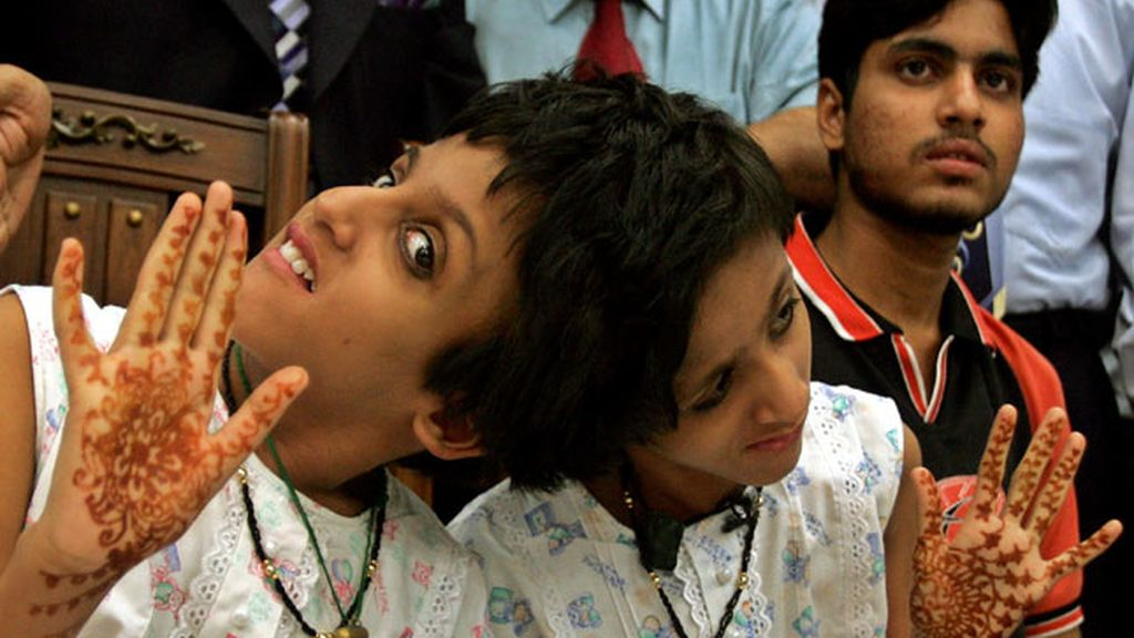 Las gemelas indias Sabah y Farah juntas 'forever'