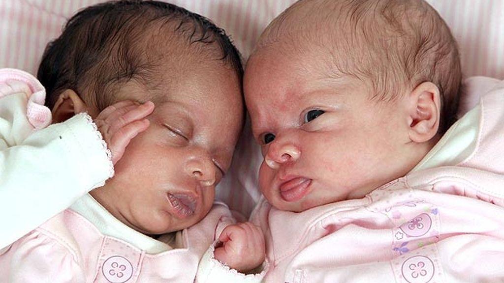 Los padres de la niña son mestizos y la familia de ambos tiene ascendencia africana e irlandesa.