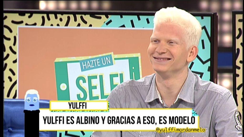 Yulffi, el primer modelo español albino