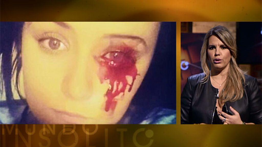Mundo insólito: una joven que llora sangre, un hombre lobo, una silueta imborrable...