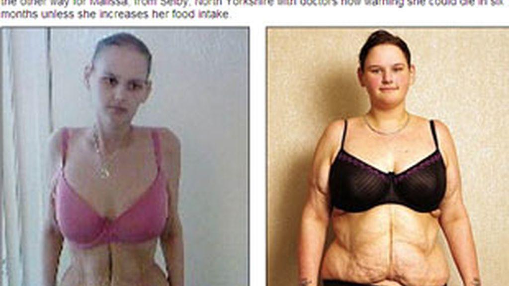 La adolescente más gorda de Reino Unido ahora sólo pesa 51 kilos. Foto: Daily Mail.