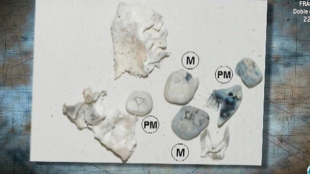 El informe Etxeberría revela restos humanos en las Quemadillas