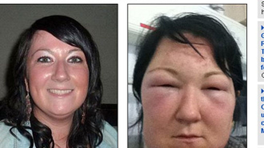 Mariade Kelly, de 29 años, terminó en Urgencias después de usar un tinte para el cabello que le provocó una grave reacción alérgica.