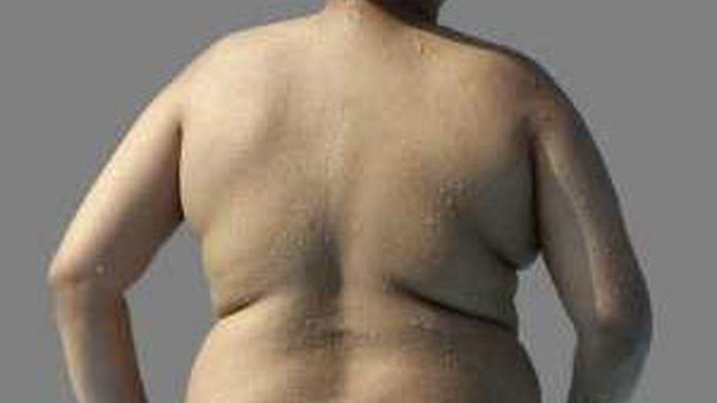 Los adolescentes obesos tienen más probabilidades de sufrir cáncer cuando son adultos. Foto: AP
