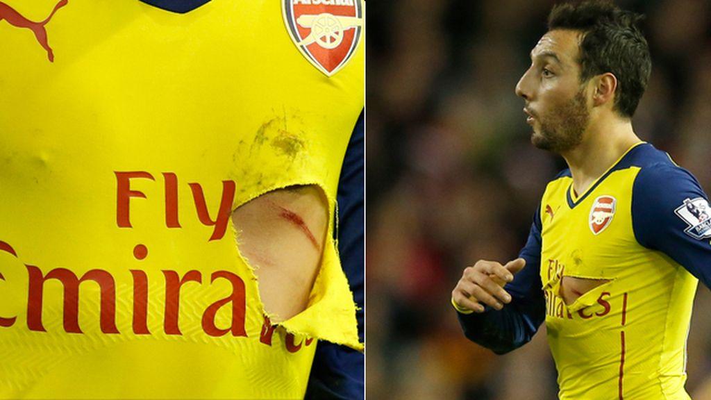 Brutal entrada Cazorla, agujero en la camiseta, herida en el costado… y roja