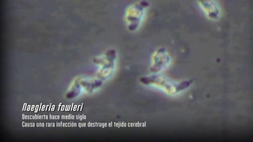La ameba 'comecerebros': Enemigo invisible