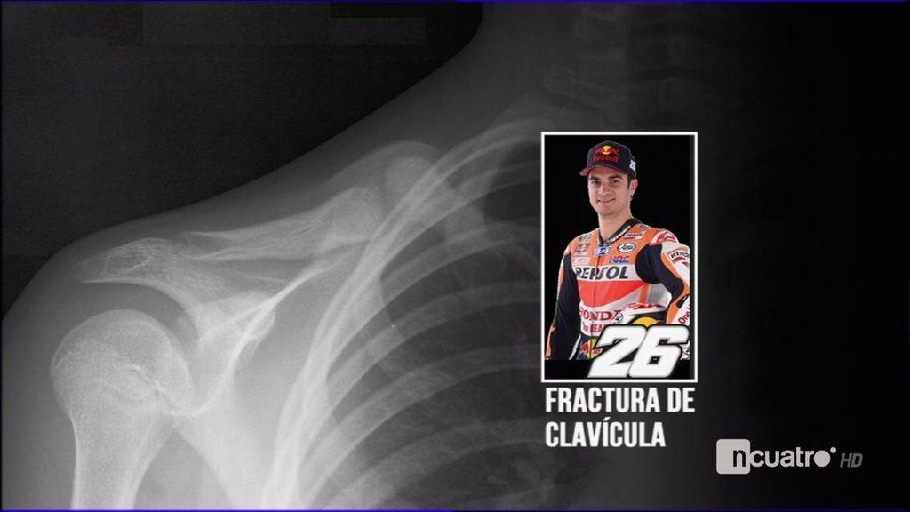 Dani Pedrosa 'voló' 15 metros en la caída con la que se fracturó la clavícula derecha