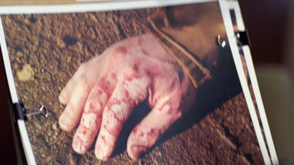 A Morgan le llama la atención unas quemaduras en las manos de las víctimas