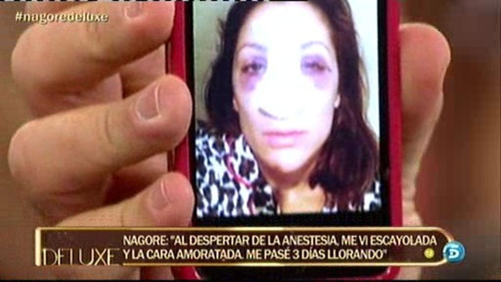Nagore nos muestra las imágenes de cómo quedó su cara tras la intervención