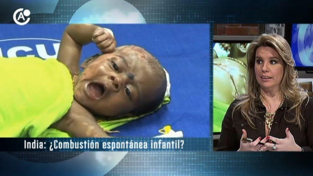 Combustiona en varias ocasiones un bebé de dos meses y medio en la India