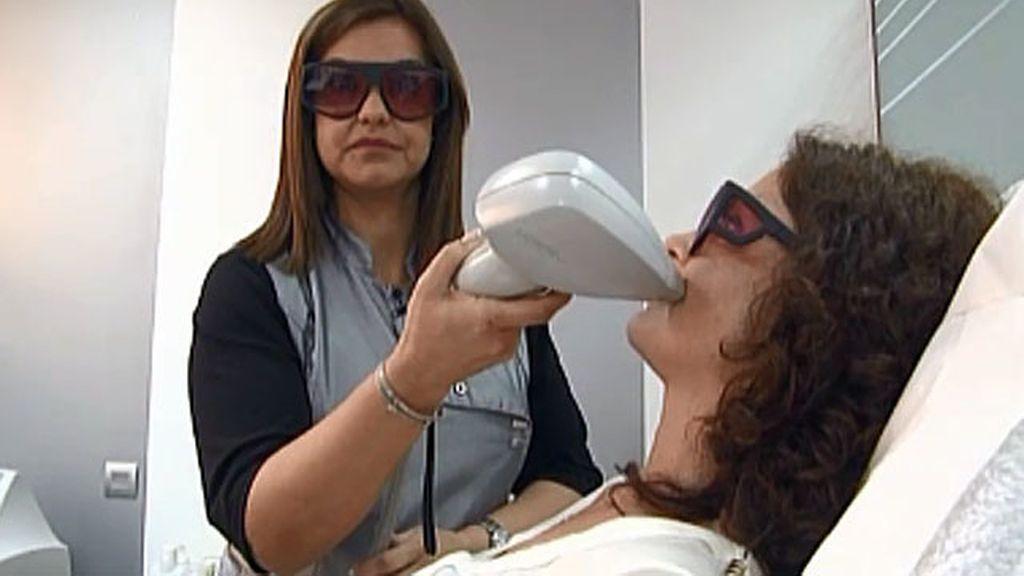 Ofrezco: sesión de depilación láser a cambio de instalación de tarima flotante