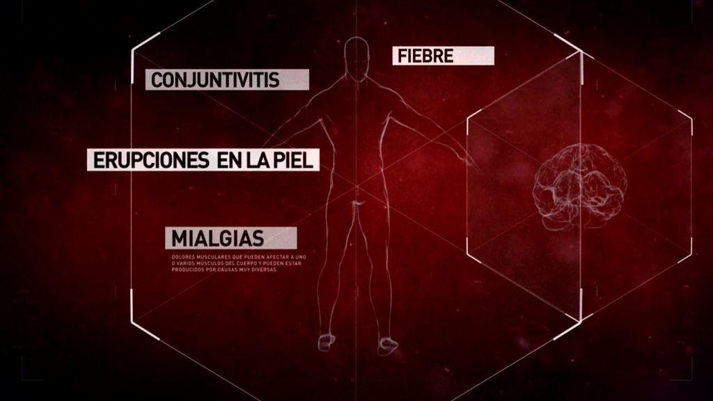 """Dr. Pérez Molina, sobre el Zika: """"Es una epidemia que se extiende de forma explosiva"""""""
