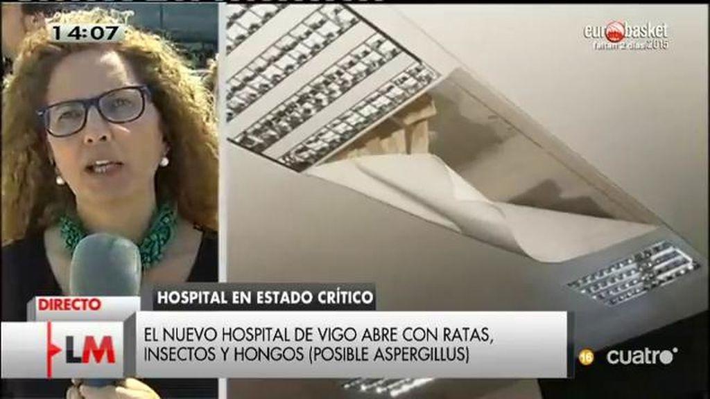 Ha fallecido una mujer en el hospital de Vigo por el virus del apergillus