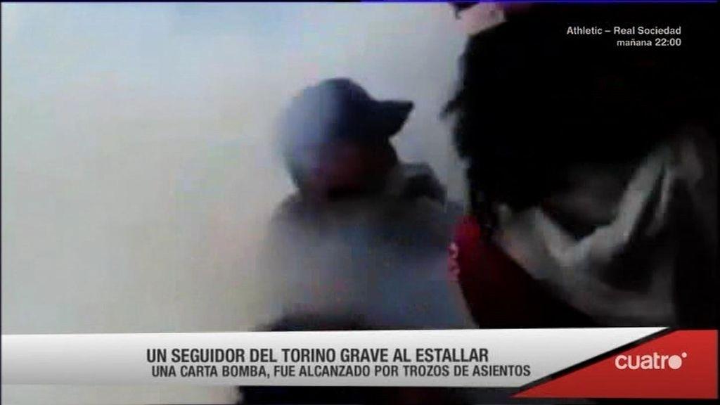 La última locura ultra: una 'carta-bomba' deja diez heridos en el derbi de Turín