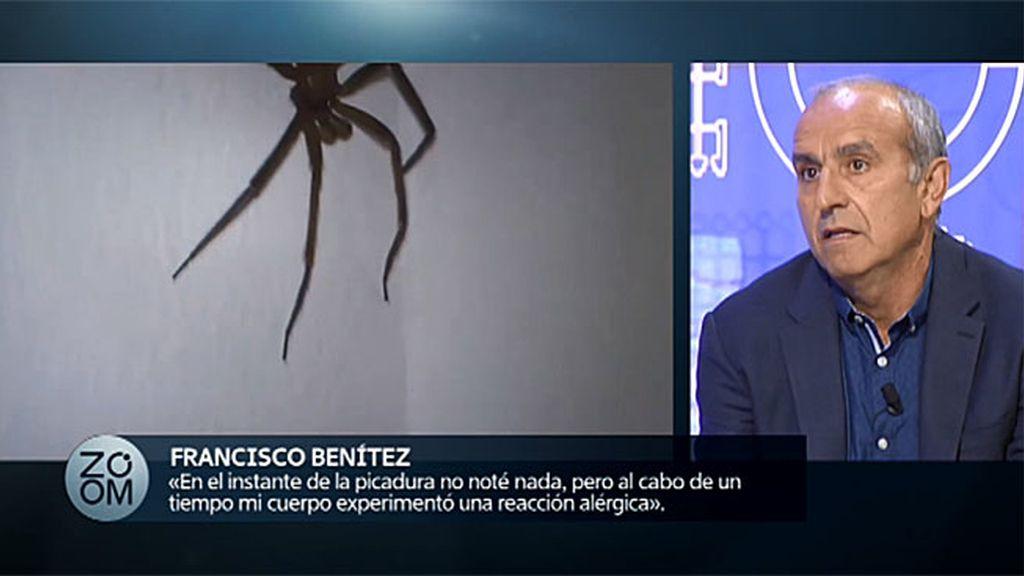 El terrible testimonio de un afectado por la picadura de una araña, en 'Zoom'