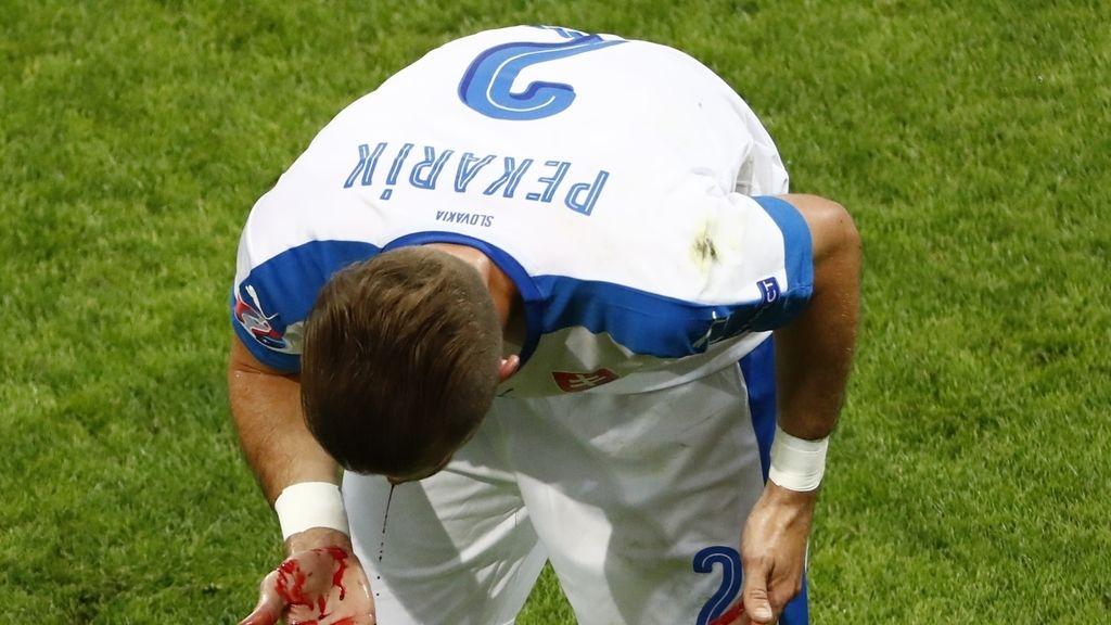 Pekarik acaba sangrando tras un codazo de Bertrand por el que debió ver la roja