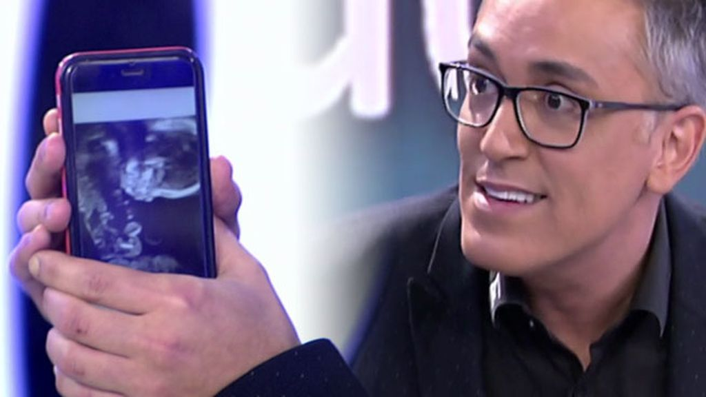 "¡Kiko Hernández va a ser padre!: ""Nacerán en febrero y son dos niñas"""