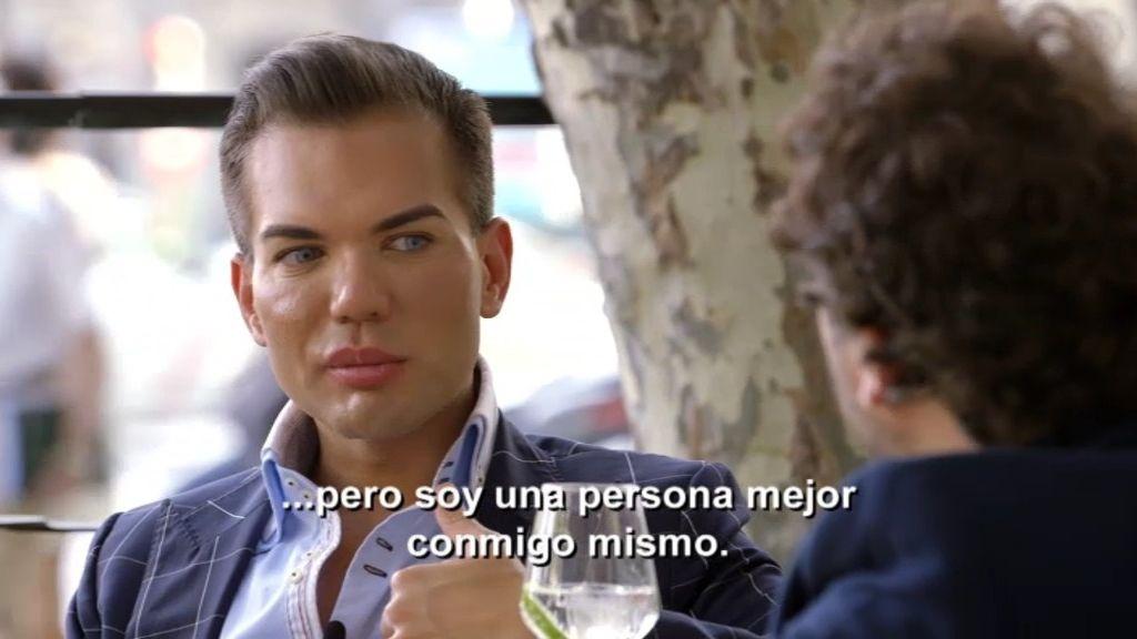 """Rodrigo lleva 24 operaciones estéticas: """"Yo no me veo como tú me ves"""""""