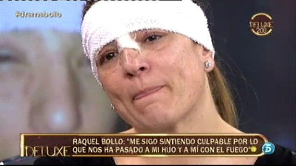 """Raquel Bollo: """"Me siento culpable por lo que nos ha pasado a mi hijo y a mí con el fuego"""""""