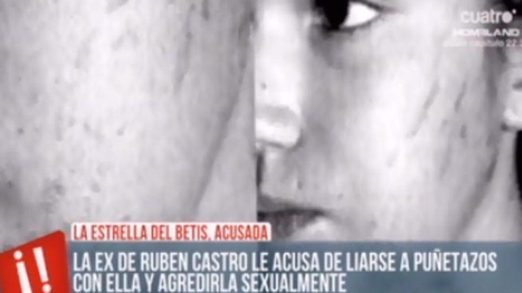 Las diferentes versiones sobre la supuesta agresión de Rubén Castro a su ex