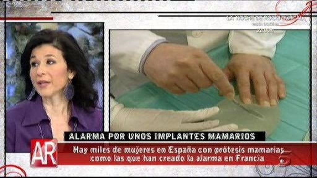 """""""Las prótesis PIP se rompen y se van al sistema linfático"""""""