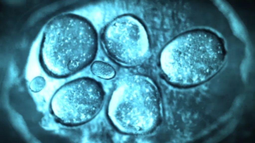 Súper bacterias, protagonistas indeseadas