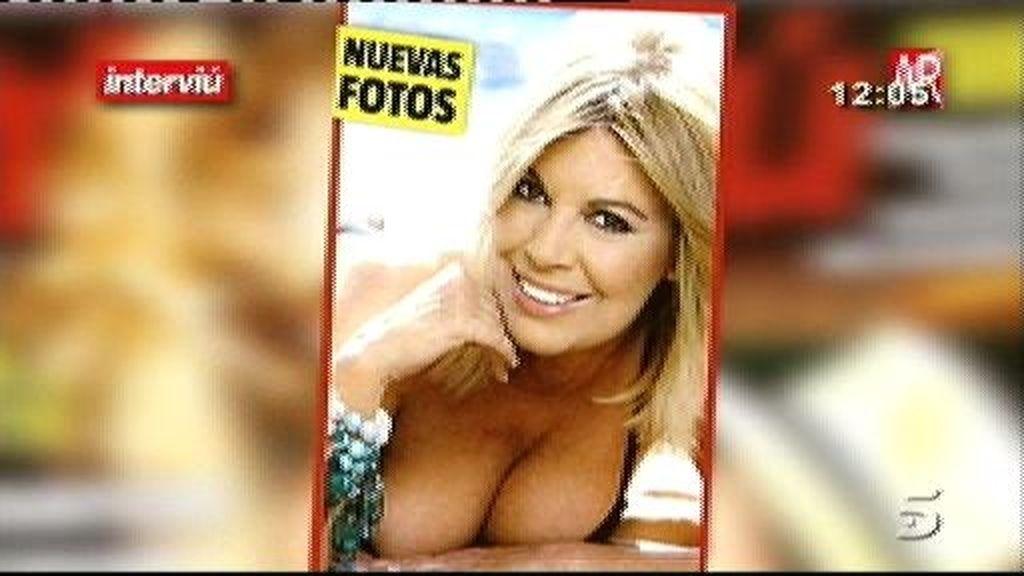 """Terelu Campos: """"No me arrepiento. Estoy estupenda"""""""