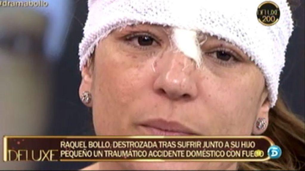 La mala racha de Raquel Bollo