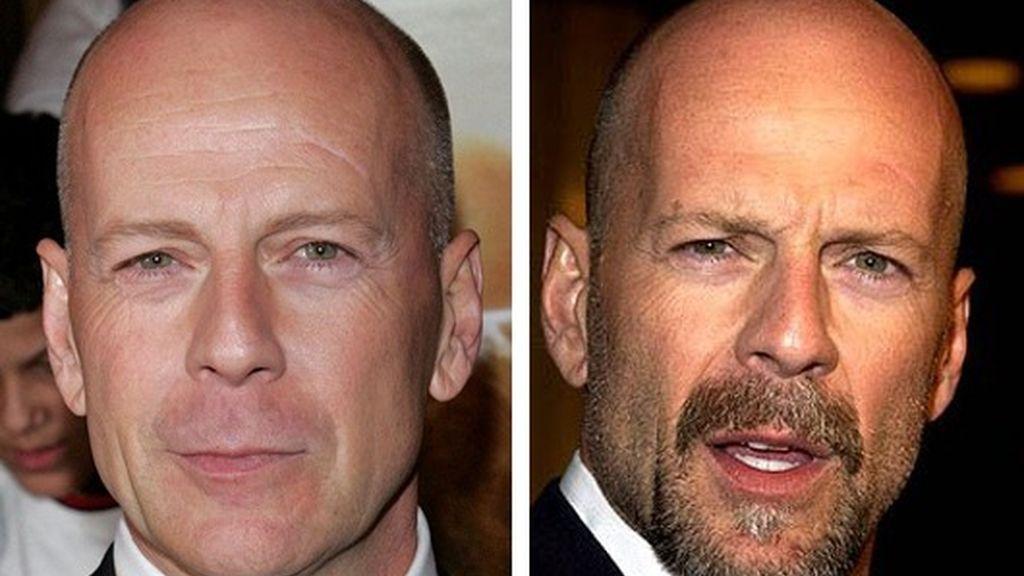 Los famosos, mejor sin barba