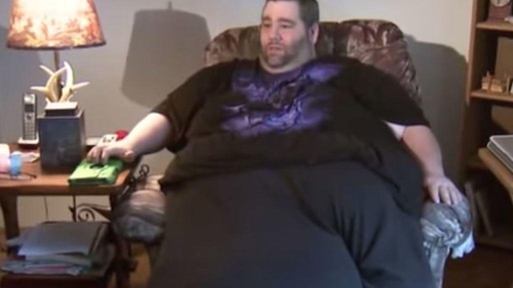 El hombre con el testículo gigante consigue dinero suficiente para someterse a una operación