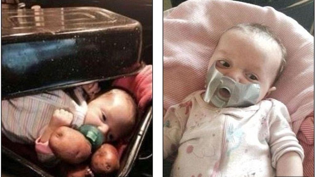Genera polémica al subir fotos de su nieta con cinta aislante en la cara o en una bandeja para asar