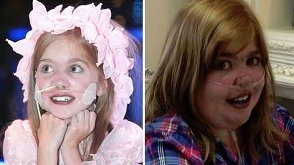 Muere la joven Kirsty Howard, tras años de lucha contra su extraña condición