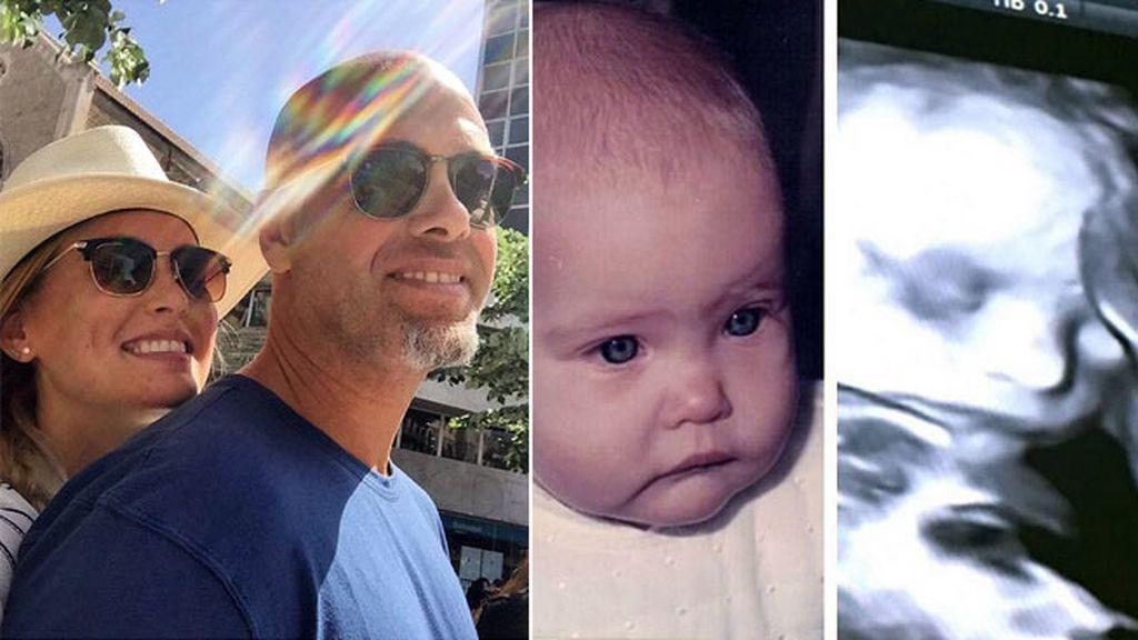 Bar Rafaeli ya le saca parecidos y compara la eco con una foto suya de bebé