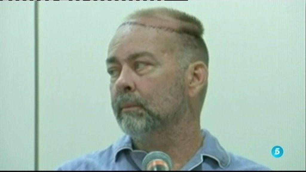 Un hombre se somete al primer trasplante de cráneo y cuero cabelludo