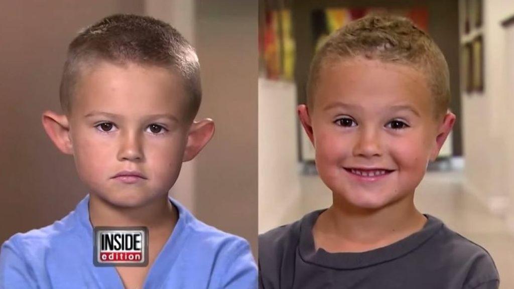 """Un niño de seis años se somete a cirugía plástica para corregir sus """"orejas de elfo"""""""