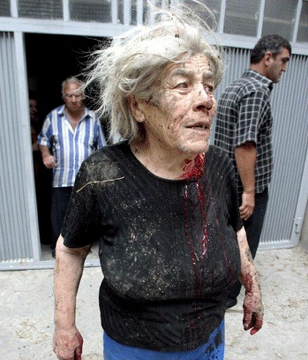 El ataque ruso ha dejado miles de civiles heridos en Georgia