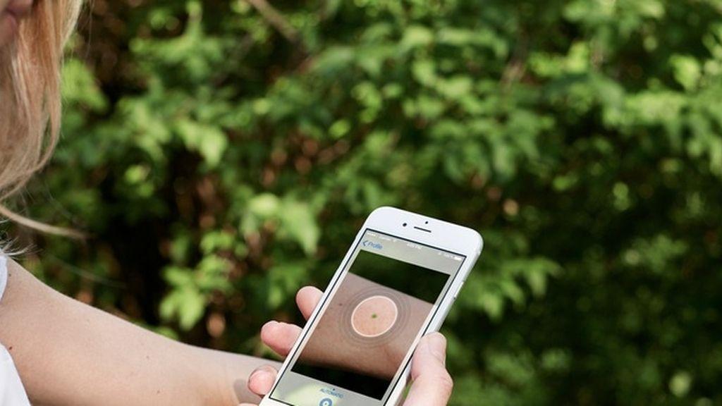 Una app detencta el cáncer de piel