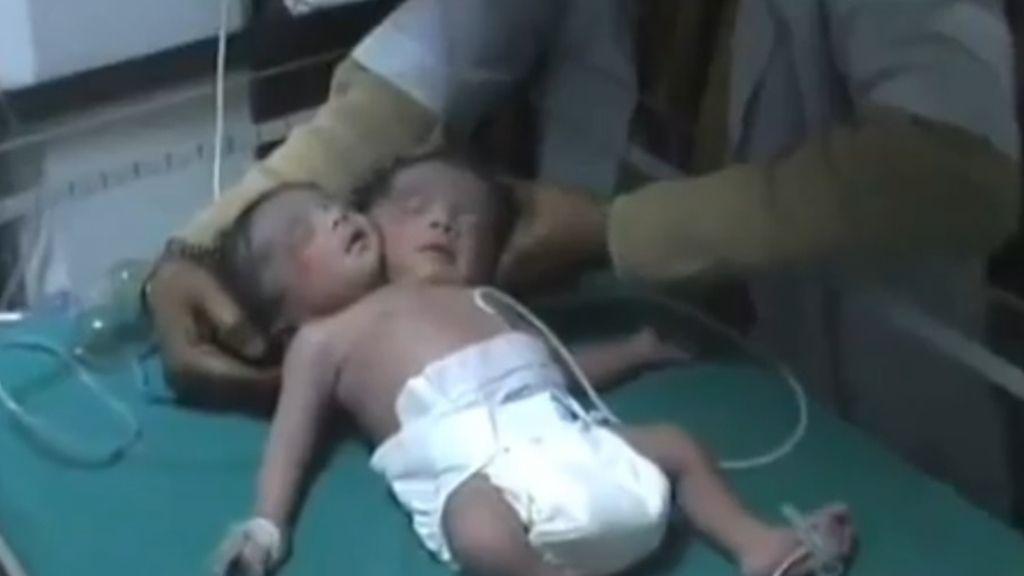 Nace una niña con dos cabezas en la India