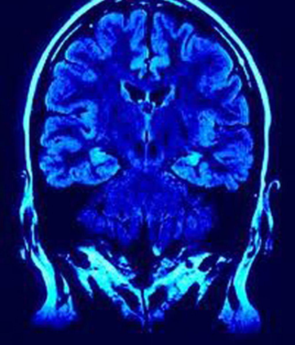 Una reciente investigación ha identificado ocho factores que incrementan el riesgo de sufrir un ictus. Foto archivo