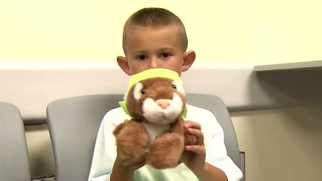Un niño de seis años se somete a cirugía plástica para corregir sus \