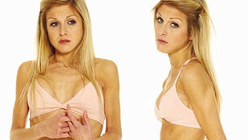 Nikki Grahame, una ex concursante del Gran Hermano británico, sufre anorexia. Foto: Daily Mail.