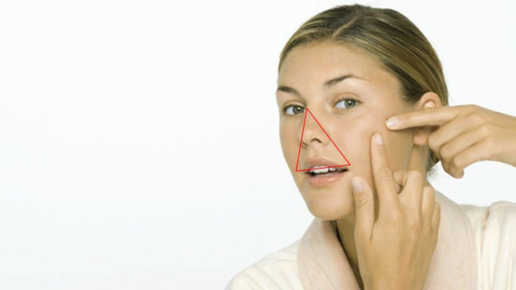 ¿Sabes por qué no debes explotarte un grano en esta zona de la cara?