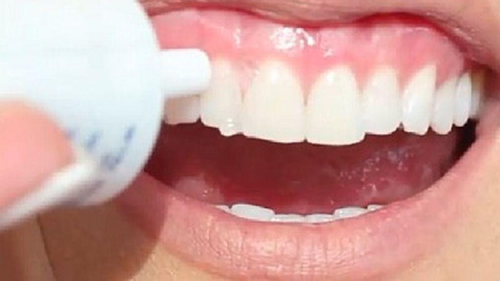 Blancorexia: la enfermedad de los dientes blancos