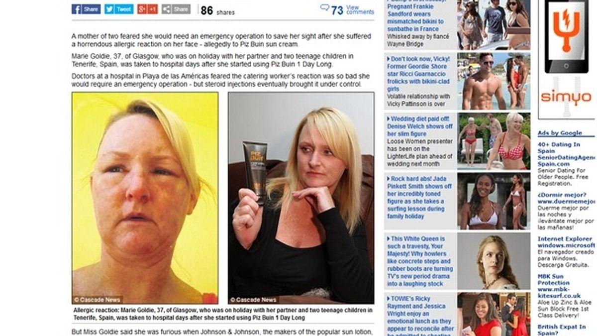 Una crema solar le destroza la piel