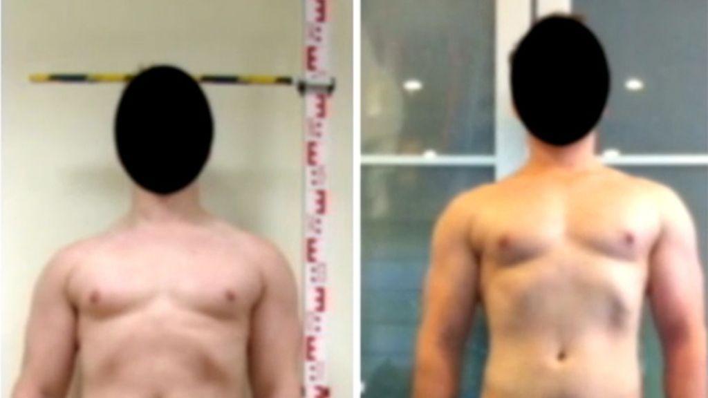 Este hombre ha crecido 15 centímetros gracias a la dolorosa operación.