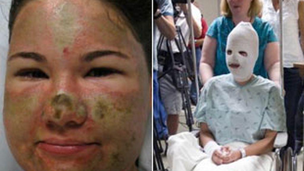 Imágenes de archivo de Bethany Storro tras haberse arrojado ácido en la cara. Fotos: AP.