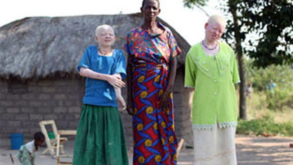 Mary Mathias junto a sus dos hijas albinas. Foto: The Sun.