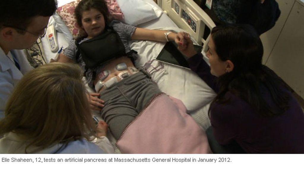 A Elle Shaheen le implantan un páncreas artificial para controlar su diabetes